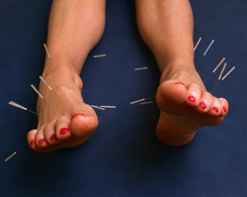 Acupuncture of the feet